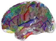 Understanding autism: novel brain imaging study challenges the dominant explanation