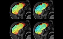 Towards greater accuracy in the measurement of temperature variations induced by MRI examinations