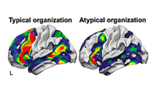 An atypical cerebral organization for language