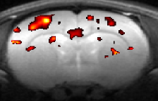 Diffusion functional MRI: direct approach to detect the brain function